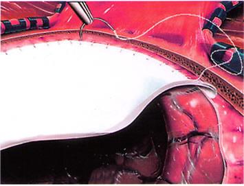 结构清晰可见; 相对于牛胶原海绵制成的脑膜替代品